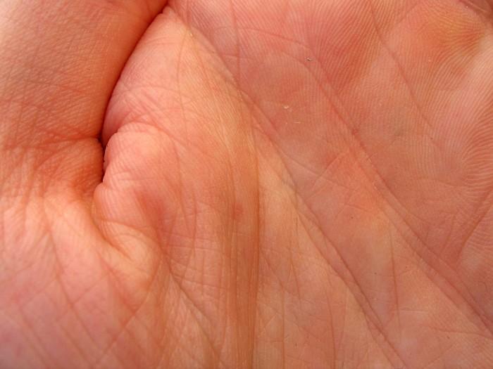 Les lignes sont des sillons nets ou profonds, légers ou colorés